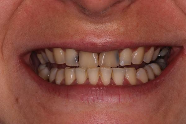 Перелечиваем передние зубы, чтобы можно было вновь улыбаться