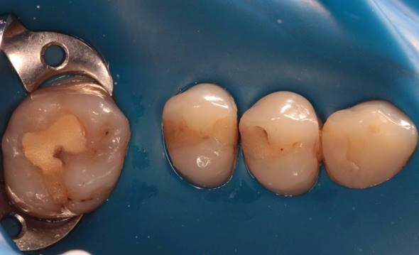 Разновидности восстановления контактов между зубами