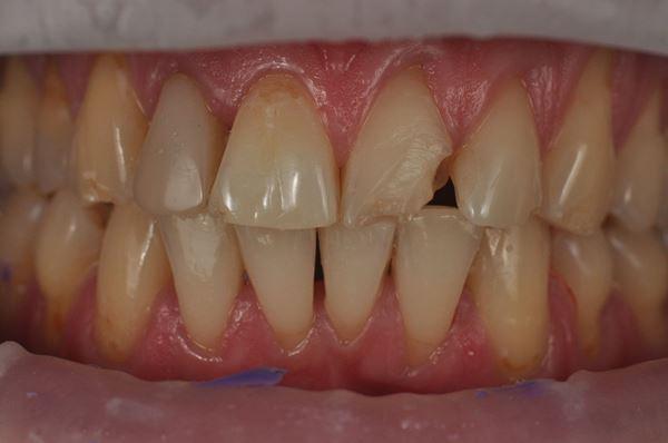 Восстановление после травмы зуба 2.1 в стратификационной методике и по силиконовую ключу
