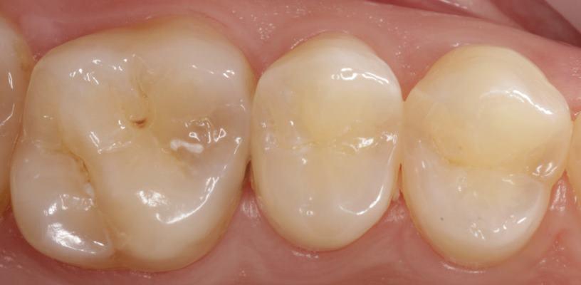 Прямая композитная реставрация зубов 2.5, 2.6