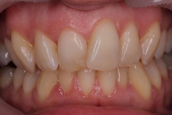 Изменение положения зуба с помощью цельнокерамических реставраций