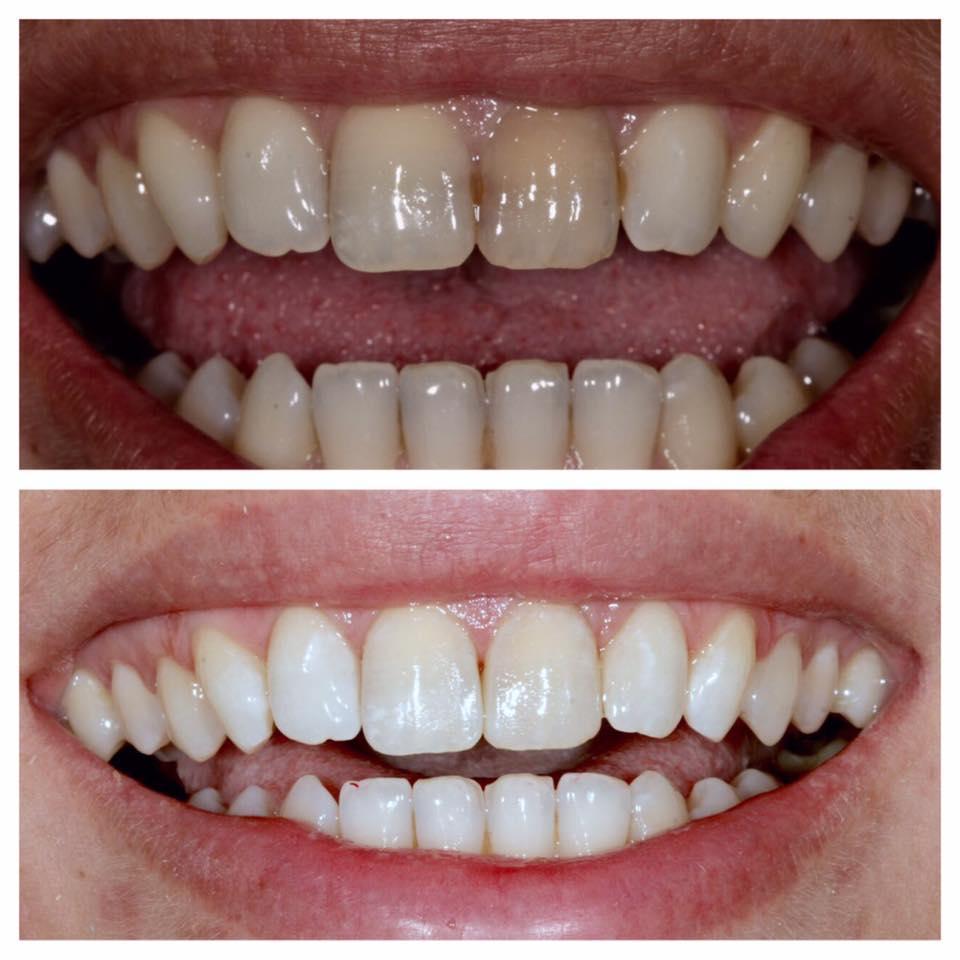 лампа для отбеливания зубов отзывы