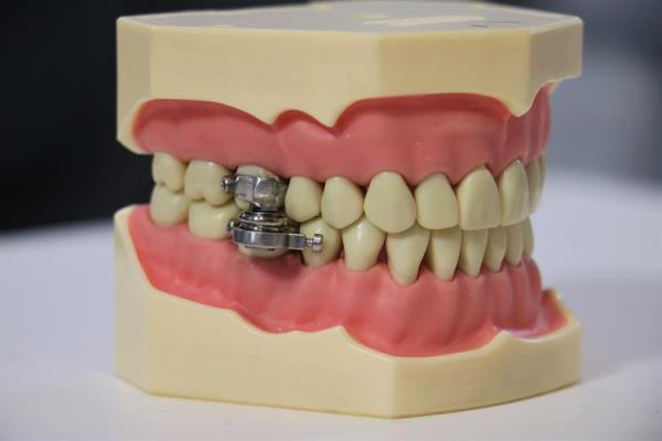 Придумали конструкцию, фиксируемую во рту, предназначенную для снижения веса
