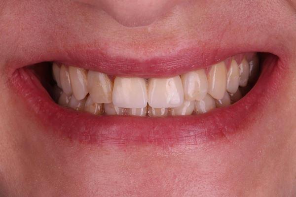 Эстетическая реабилитация в переднем отделе верхней челюсти