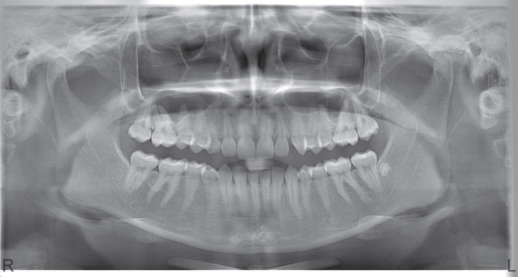 Остеосклероз фото