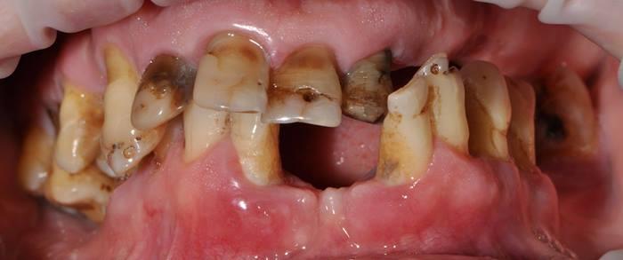 Тотальная перестройка прикуса у пациента с проблемами твёрдых тканей зубов и генерализованным пародонтитом