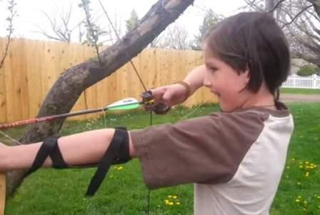 Как мальчик удаляет зуб с помощью лука и стрелы