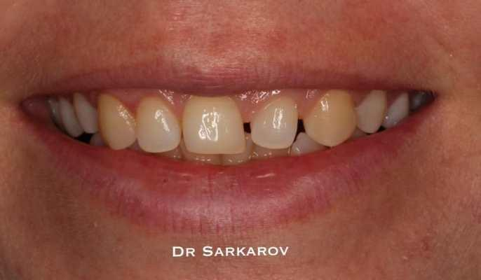 Трансформация зуба 22 в 21 в технике прямой реставрации