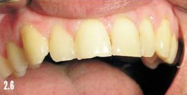 Icon в стоматологии для лечения кариеса зубов
