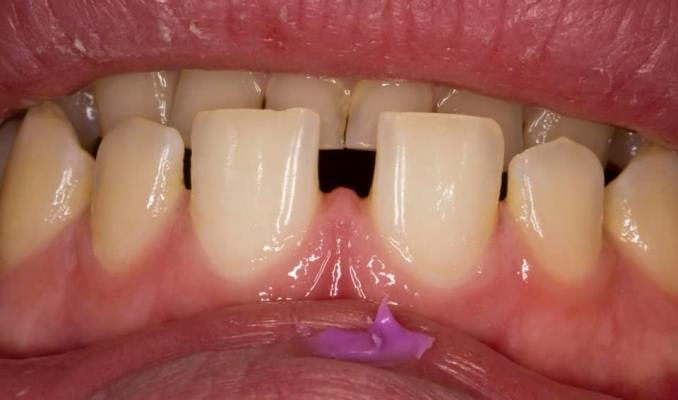 Прямая реставрация без препарирования зубов