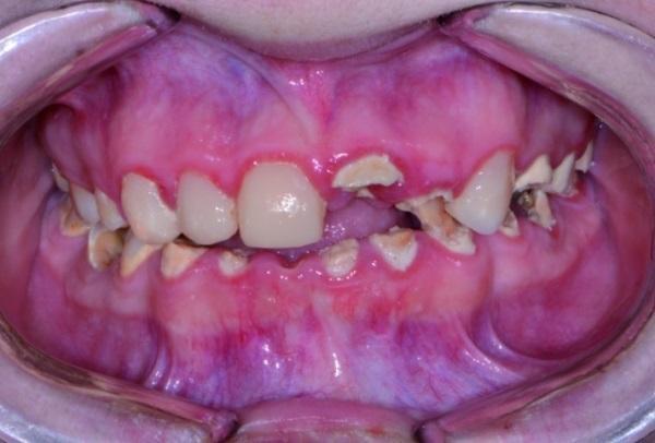 Полная реконструкция стоматологического статуса с использованием новых технологий