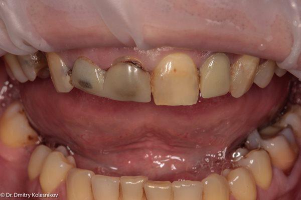 Восстановление эстетики фронтальных зубов после неудовлетворительного протезирования