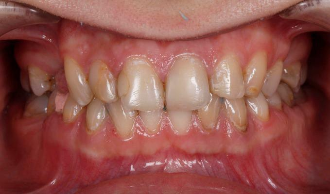 Комплексная реабилитация пациента с зубоальвеолярными деформациями