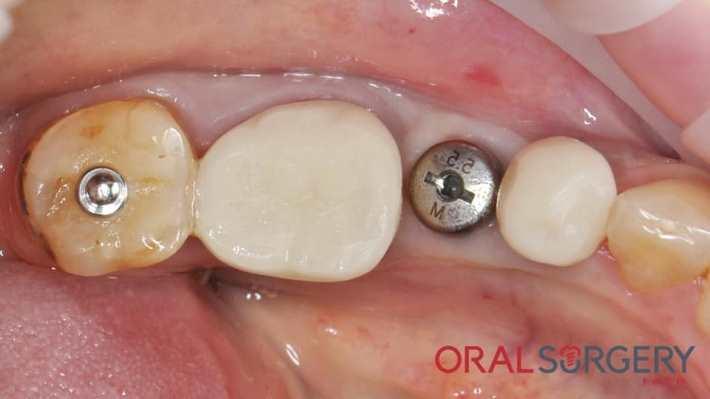 Немедленная имплантация в области нижнего моляра