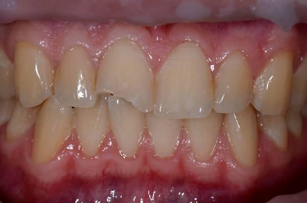 Устранение скола зуба с помощью прямой реставрации