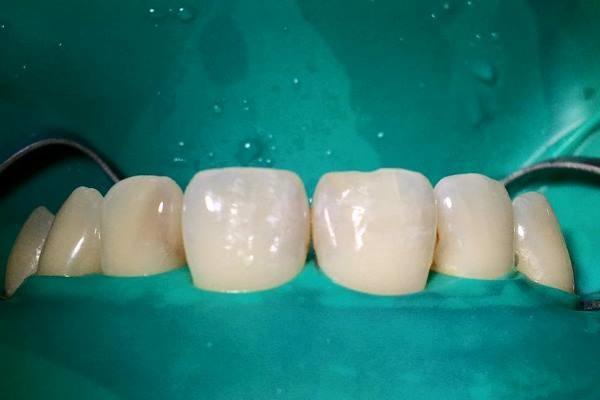 Замена неэстетичных пломб на зубах 12, 11, 21, 22