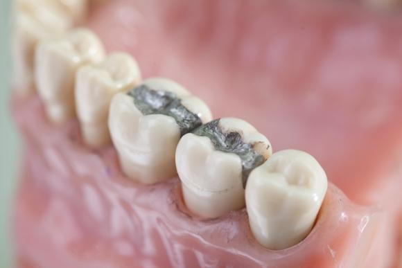 Зубные пломбы влияют на уровень ртути в крови