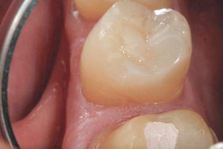 Упрощенный подход к реставрациям жевательной группы зубов