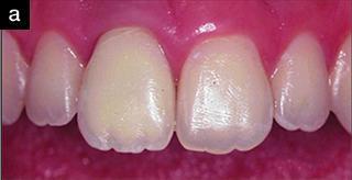 Замещение одного отсутствующего зуба в переднем сегменте: клиническое наблюдение спустя 12 лет