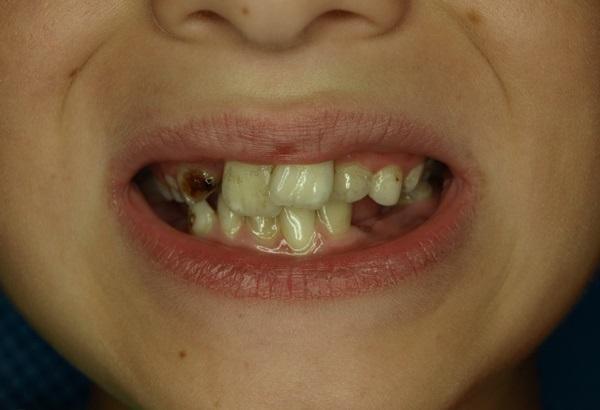 Комплексный подход в лечении зубочелюстной аномалии у ребенка с 9 до 13 лет