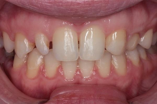 Рациональная эстетическая реабилитация пациента с аномалией развития твердых тканей зубов с помощью цельнокерамических реставраций
