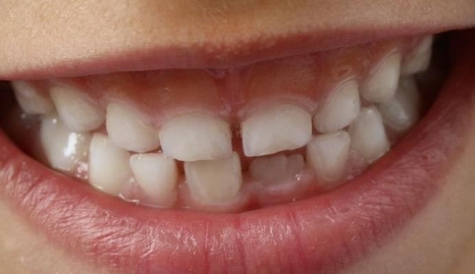 В масштабном исследовании сравнили 3 метода лечения и профилактики кариеса молочных зубов
