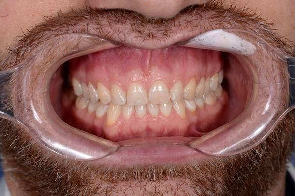 Функционально-эстетическая реабилитация фронтальных зубов с помощью виниров