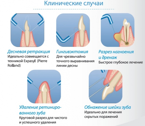 клинические случаи с применением прибора Servotome