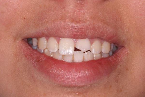 Восстановление после одиночной травмы переднего зуба