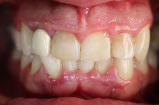 Эстетическое протезирование фронтальной группы зубов верхней челюстей с использованием каркаса из диоксида циркония, облицованного керамикой