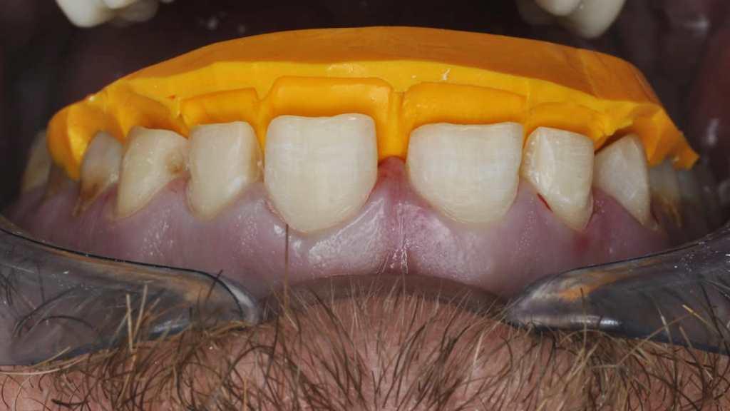 виниры на зубы через интернет