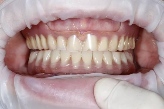"""Немедленное временное протезирование с опорой на дентальные имплантаты по концепции """"Weld-on-4"""" у пациента с дефектами альвеолярного гребня в достланных отделах нижней челюсти"""