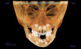 На конусно-лучевой компьютерной томографии определяется резорбция буккальной кортикальной пластинки с глубоко лежащими зубными зачатками 31, 32, 41 и 42 зуба.