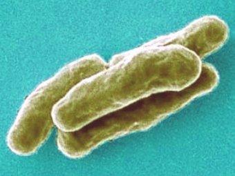 Заболевания пародонта как манифестация абдоминального туберкулеза
