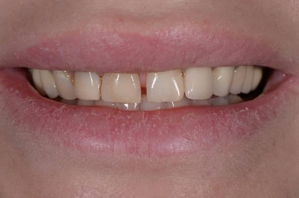 Прямая реставрация зубов 1.3, 1.2, 1.1, 2.1 c закрытием диастемы
