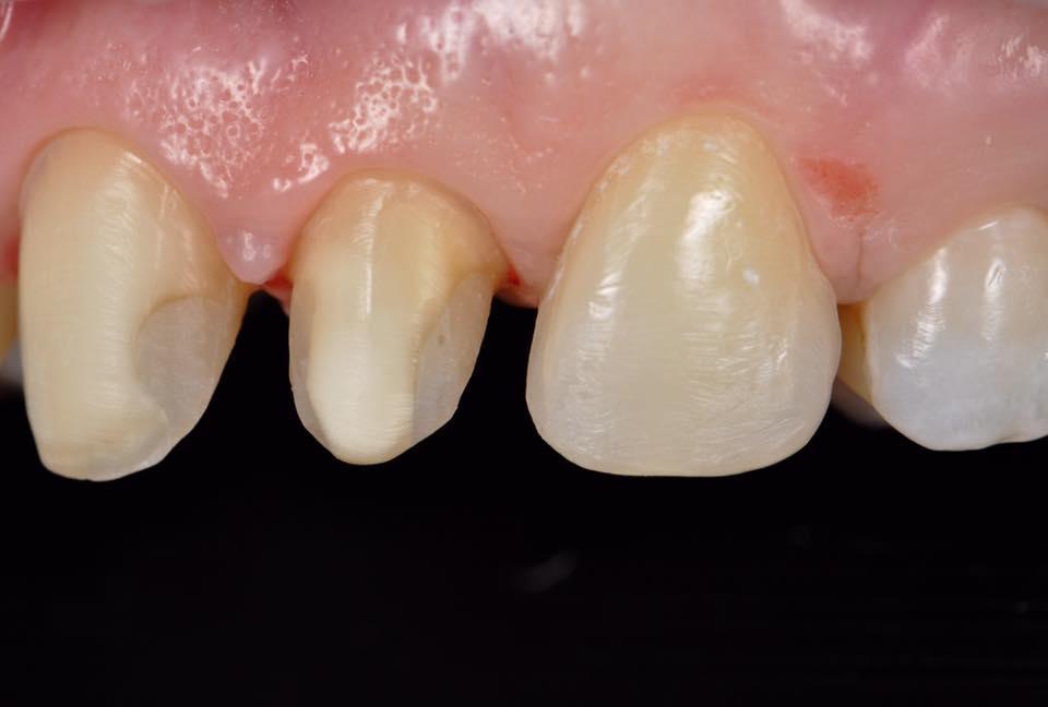 Восстановление передних зубов на штифтах