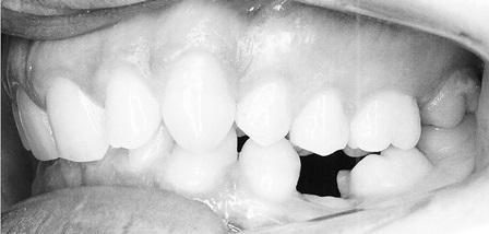 Применение костного анкоража при множественной адентии премоляров, анкилозе молочных моляров и наклонном положении прикусной плоскости
