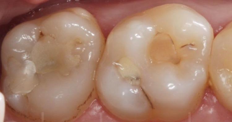 Прямые реставрации зубов 2.6, 2.7