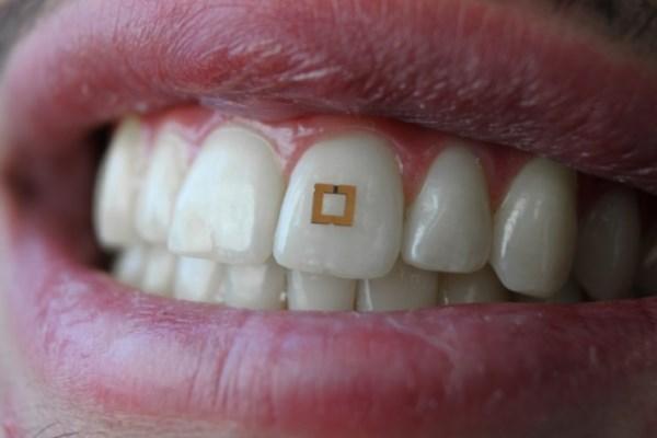Разработали назубный датчик для отслеживания пищевых привычек