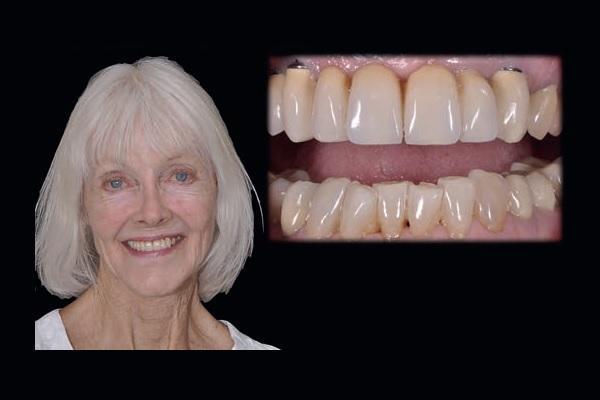 Цифровой дизайн улыбки с учетом конфигурации лица