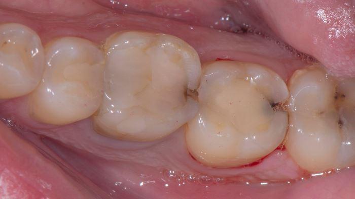 Восстановление жевательных зубов керамическими конструкциями