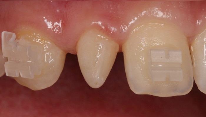 Трансформация шиповидного зуба