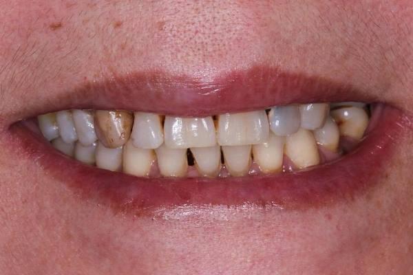 Сложная реставрация шести зубов
