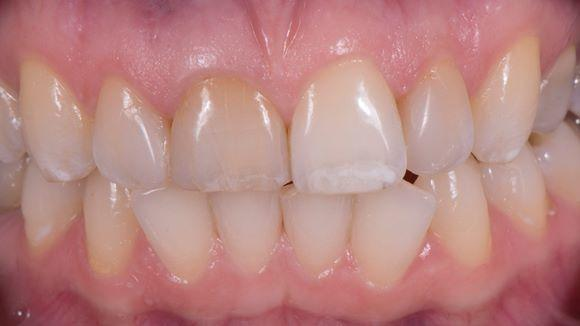 Замена несостоятельных композитных реставраций 4 резцов верхней челюсти на керамические реставрации, изготовленные на CEREC