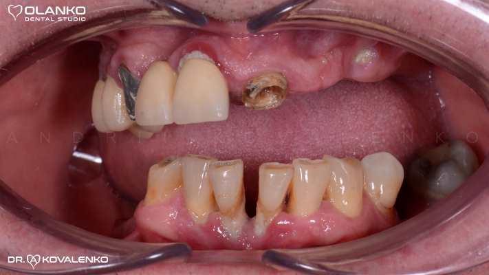 Тотальное восстановления эстетики и функции зубных рядов на верхней и нижней челюсти