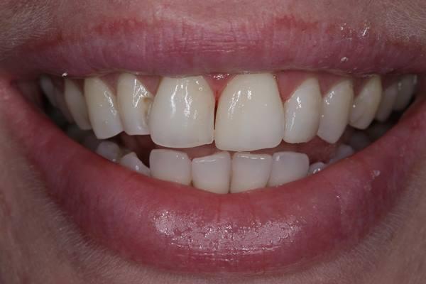 Реставрация центральных зубов в комбинации Ceram-X Duo дентин и Ceram.X SphereTEC эмаль