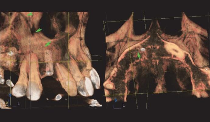 Дентальный имплантат в Canalis Sinuosus: клинический случай и обзор литературы