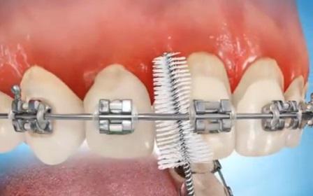 Замена сахара на подсластитель ксилит не влияет на состояние зубов у пациентов с брекетами, как считалось ранее
