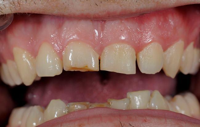 Восстановление косметической длины 11 и 21 при эрозивной потере тканей зуба
