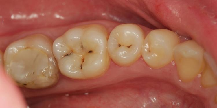 Лечение вторичного кариеса под пломбой зуба 3.6, 3.5